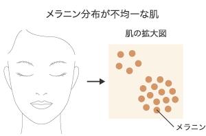 メラニン分布が不均一な肌(イメージ)